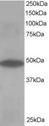 Western blot - Anti-ORP1 antibody (ab113530)