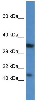 Western blot - Anti-PKIB antibody (ab113616)