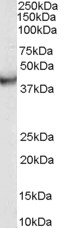 Western blot - Anti-VPS37C antibody (ab113630)