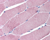 Immunohistochemistry (Formalin/PFA-fixed paraffin-embedded sections) - Anti-RNF90 antibody (ab113635)