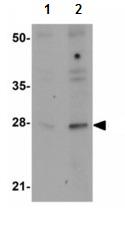 Western blot - Anti-GOLPH3 antibody (ab113649)