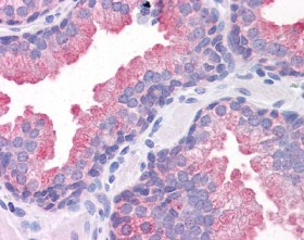 Immunohistochemistry (Formalin/PFA-fixed paraffin-embedded sections) - Anti-TMEM184A antibody (ab113708)
