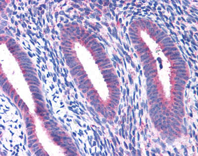 Immunohistochemistry (Formalin/PFA-fixed paraffin-embedded sections) - Anti-RPL22 antibody (ab113714)