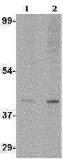 Western blot - Anti-SLC35D1 antibody (ab113717)