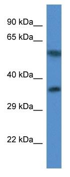 Western blot - Anti-MRPL45 antibody (ab113786)