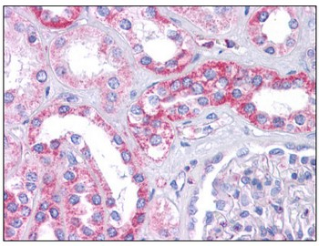 Immunohistochemistry (Formalin/PFA-fixed paraffin-embedded sections) - Anti-SIPA1L1 antibody (ab113815)