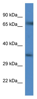 Western blot - Anti-Glyt1 antibody (ab113823)