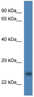Western blot - Anti-Superoxide Dismutase 4 antibody (ab113915)