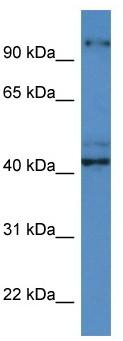 Western blot - Anti-ATCAY antibody (ab113923)