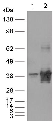 Western blot - Anti-ERCC1 antibody [OTI4F9] (ab113941)
