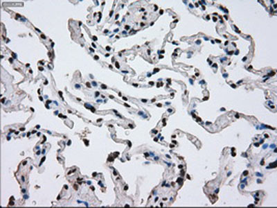 Immunohistochemistry (Formalin/PFA-fixed paraffin-embedded sections) - Anti-ERCC1 antibody [OTI4F9] (ab113941)