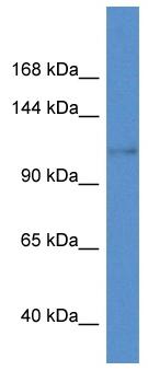 Western blot - Anti-KCNH8 antibody (ab113944)
