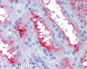 Immunohistochemistry (Formalin/PFA-fixed paraffin-embedded sections) - Anti-GCC2 antibody (ab113967)