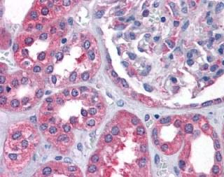 Immunohistochemistry (Formalin/PFA-fixed paraffin-embedded sections) - Anti-Cyt 19 antibody (ab113970)