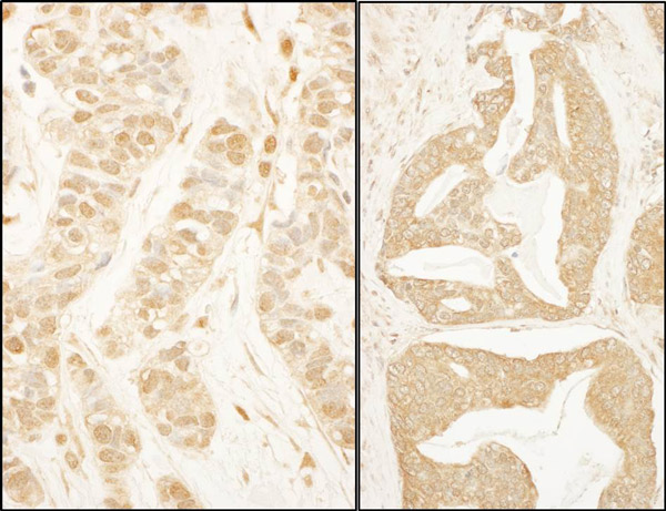 Immunohistochemistry (Formalin/PFA-fixed paraffin-embedded sections) - Anti-BTF3 antibody (ab113974)
