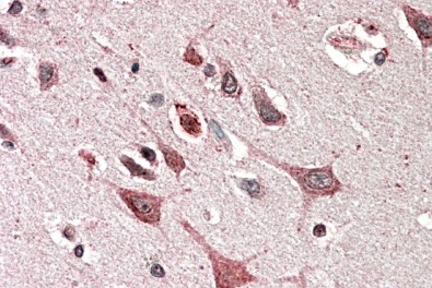 Immunohistochemistry (Formalin/PFA-fixed paraffin-embedded sections) - Anti-PREI3 antibody (ab114057)