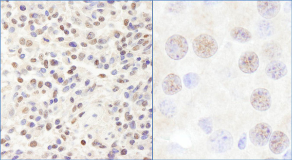 Immunohistochemistry (Formalin/PFA-fixed paraffin-embedded sections) - Anti-CHD3 antibody (ab114100)