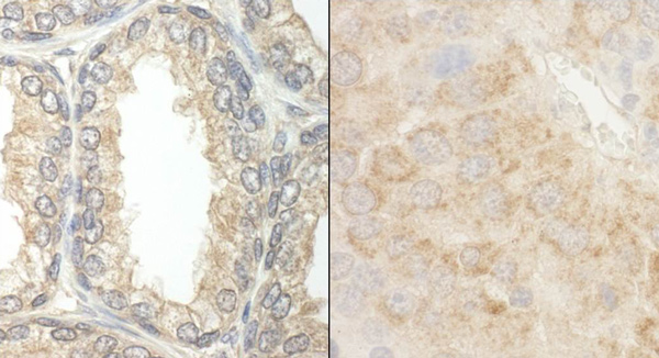Immunohistochemistry (Formalin/PFA-fixed paraffin-embedded sections) - Anti-Bad antibody (ab114105)