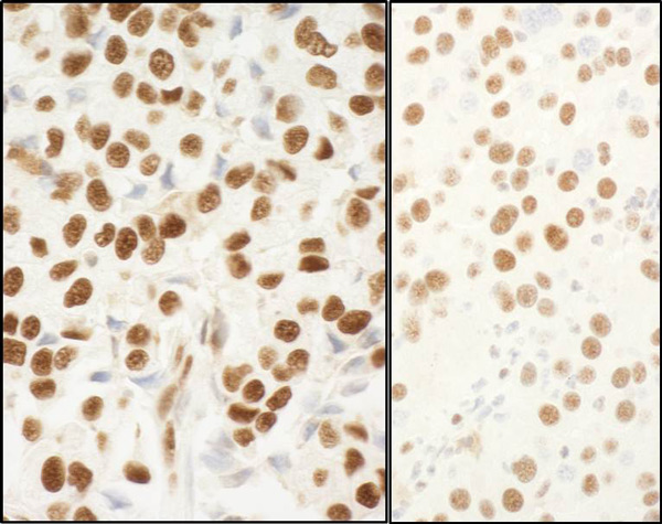 Immunohistochemistry (Formalin/PFA-fixed paraffin-embedded sections) - Anti-Nucleophosmin antibody (ab114853)