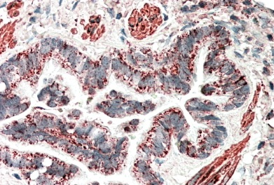 Immunohistochemistry (Formalin/PFA-fixed paraffin-embedded sections) - Anti-HCCA2 antibody (ab115013)