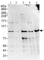 Western blot - Anti-ZBTB1 antibody (ab115170)