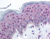 Immunohistochemistry (Formalin/PFA-fixed paraffin-embedded sections) - Anti-HMGN1 (phospho S20 + S24) antibody (ab115307)