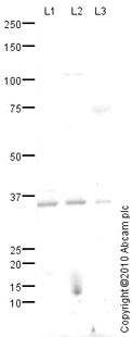 Western blot - Homologous Recombination Panel (H2A.X, gamma H2A.X phospho S139, CtIP, NBS1, RAD51, RAD54) (ab115486)