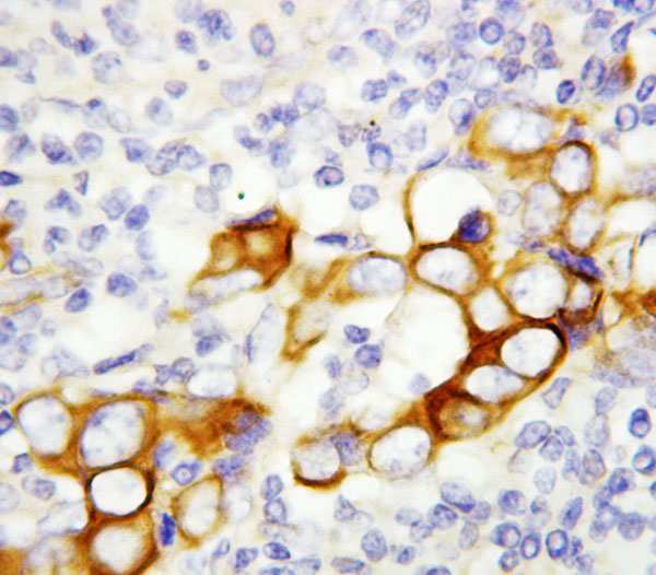 Immunohistochemistry (Formalin/PFA-fixed paraffin-embedded sections) - Anti-ARP4 antibody (ab115798)