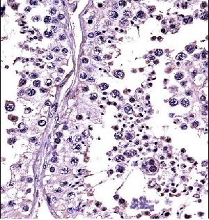 Immunohistochemistry (Formalin/PFA-fixed paraffin-embedded sections) - Anti-Relaxin 1 + 2 antibody (ab116292)