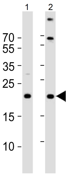 Western blot - Anti-TIMM23 antibody (ab116329)