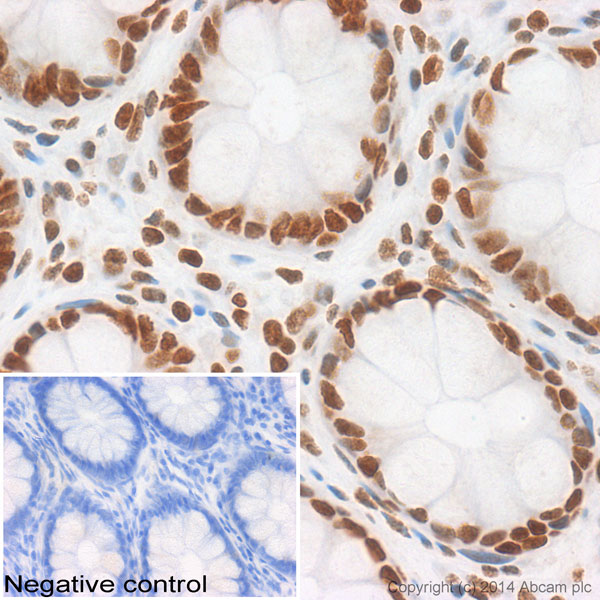 Immunohistochemistry (Formalin/PFA-fixed paraffin-embedded sections) - Anti-Histone H2A antibody (ab116677)