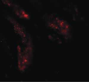 Immunocytochemistry/ Immunofluorescence - Anti-KIAA0701 antibody (ab117450)
