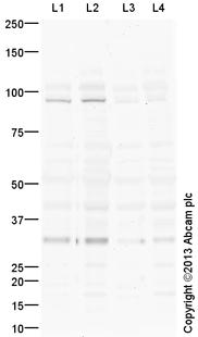 Western blot - Anti-IL1RAPL1 antibody (ab117480)