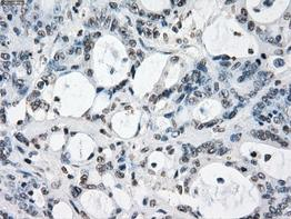 Immunohistochemistry (Formalin/PFA-fixed paraffin-embedded sections) - Anti-XRCC4 antibody [OTI4H9] (ab118008)