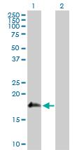 Western blot - Anti-SSH2 antibody (ab118079)