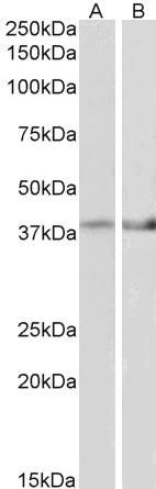 Western blot - Anti-IDH3B antibody (ab118287)