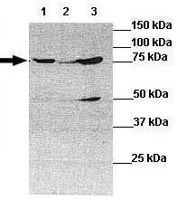 Western blot - Anti-TNS4 antibody (ab118696)