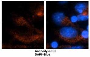 Immunocytochemistry/ Immunofluorescence - Anti-DRP1 antibody (ab118926)
