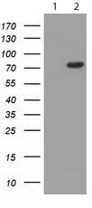 Western blot - Anti-CQ028 antibody [OTI5C4] (ab119075)