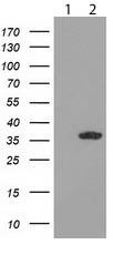 Western blot - Anti-GRHPR antibody [OTI9G2] (ab119081)