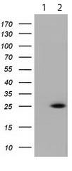 Western blot - Anti-RIT2 antibody [OTI1G2] (ab119082)