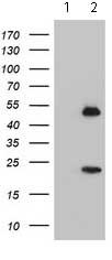 Western blot - Anti-Nucleobindin 1 Precursor antibody [OTI2A5] (ab119247)