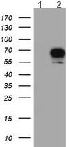 Western blot - Anti-S6K antibody [6B2] (ab119252)