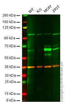 Western blot - Anti-S6K1 antibody [6B2] (ab119252)