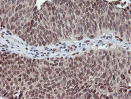 Immunohistochemistry (Formalin/PFA-fixed paraffin-embedded sections) - Anti-TPSG1 antibody [OTI1G1] (ab119268)