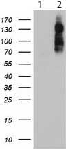 Western blot - Anti-Aminopeptidase A antibody [OTI3E7] (ab119306)