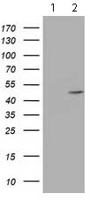 Western blot - Anti-AGPAT5 antibody [OTI1D4] (ab119366)