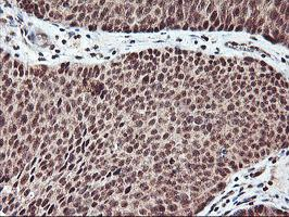 Immunohistochemistry (Formalin/PFA-fixed paraffin-embedded sections) - Anti-XLF antibody [1F3] (ab119375)