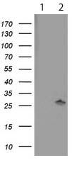 Western blot - Anti-PNPO antibody [OTI1H9] (ab119395)