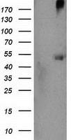 Western blot - Anti-CARKL antibody [OTI3D7] (ab119415)